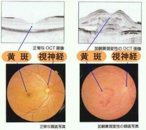黄斑と視神経