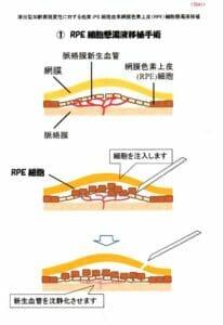 RPE 細胞懸濁液移植手術 図解