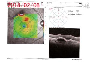 OCT(光干渉断層計)検査2